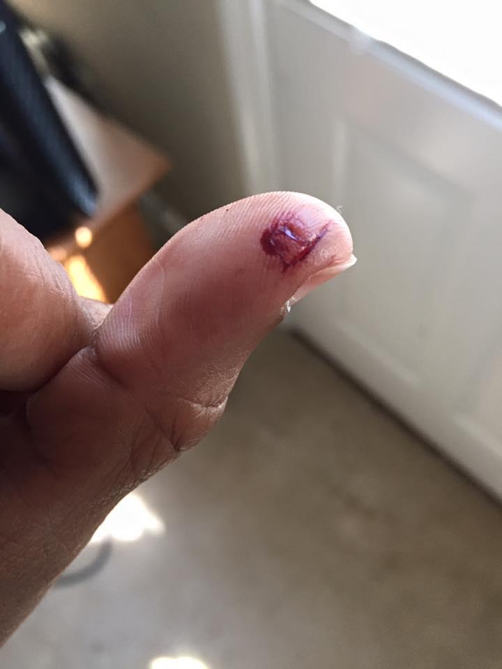 cut-thumb